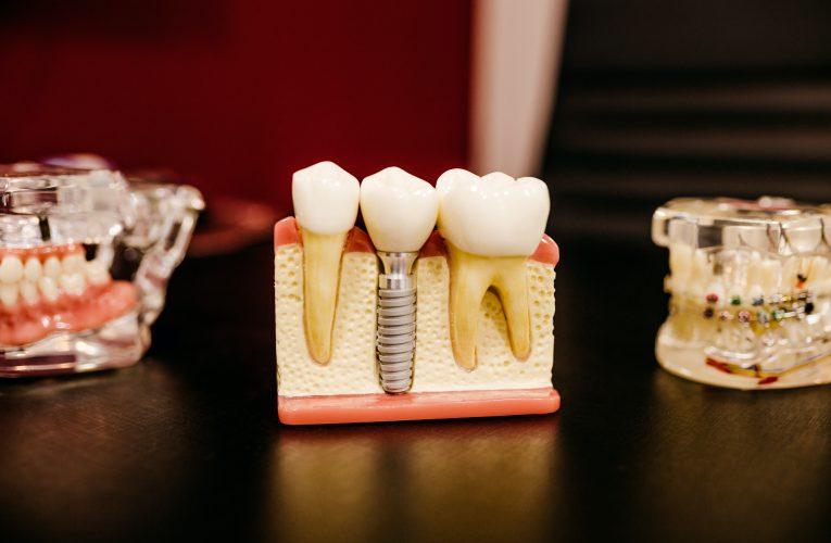 Find den bedste tandlæge i Ballerup