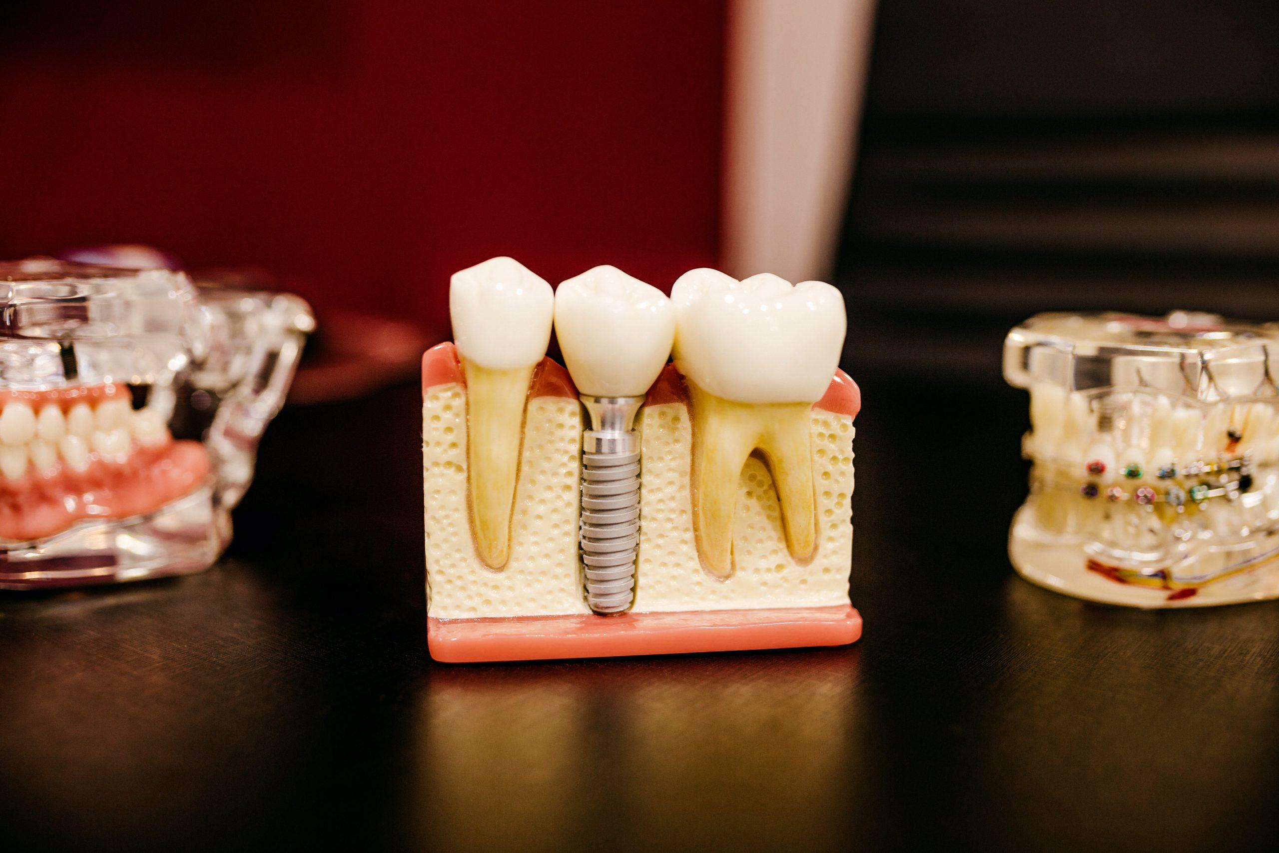 tandlæger ballerup